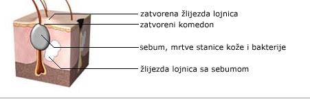 dr marija boskovic - akne