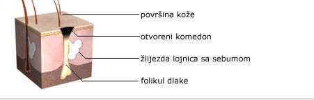 Dr MArija Bošković Akne - Nastanak kamedona