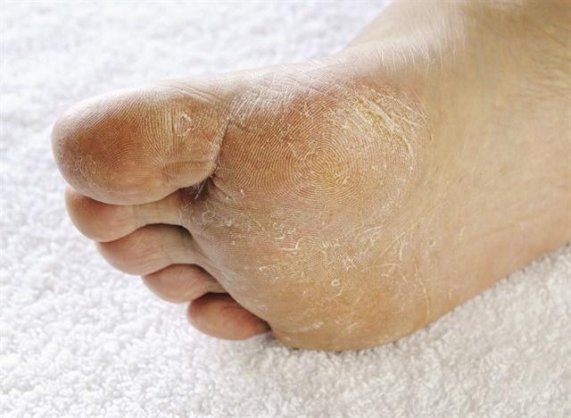 dr marija boskovic - medicinski pedikir - glivicna infekcija stopala