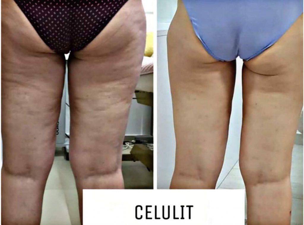 Dr Marija Bošković - Celulit - Uklanjanje celulita 01